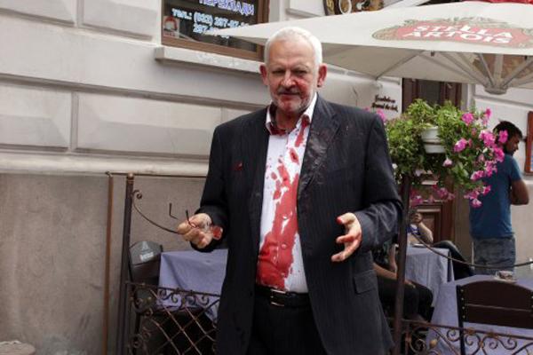 Во Львове нардепа из «Оппозиционного блока» облили свиной кровью