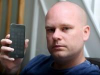 Аллергия на смартфон испортила жизнь британцу