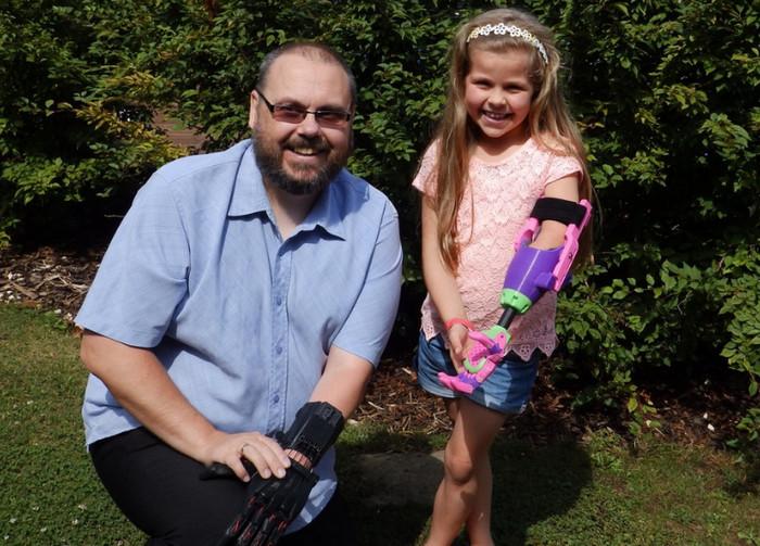 Двое англичан в сарае производят детские протезы на 3D принтере
