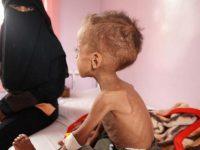 Германия призывает международное сообщество помочь 20 млн голодающих в Африке