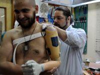 Как пройти военно-врачебную комиссию (ВВК) после ранения для получения статуса инвалида войны?