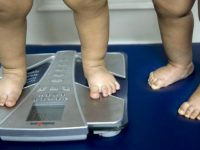 Ожирение британских детей приводит к ранней замене тазобедренных суставов