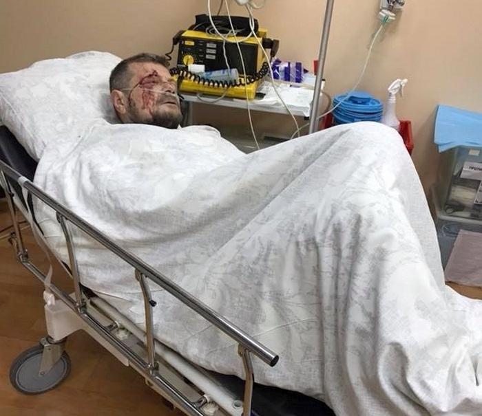 """Покушение на члена """"Радикальной партии"""" Мосийчука: есть погибший и раненые"""