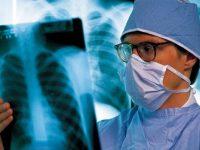 Ученые Чехии создали модель человеческого легкого для помощи в лечении астмы