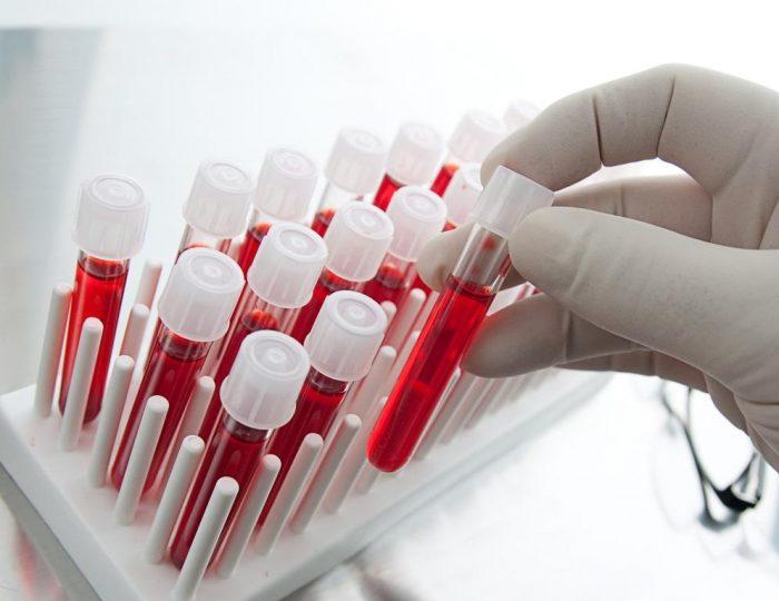 Ученые разработали технологию массового производства крови