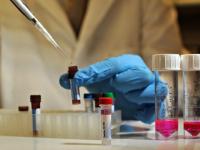 В Китае был разработан препарат, который подавляет ВИЧ