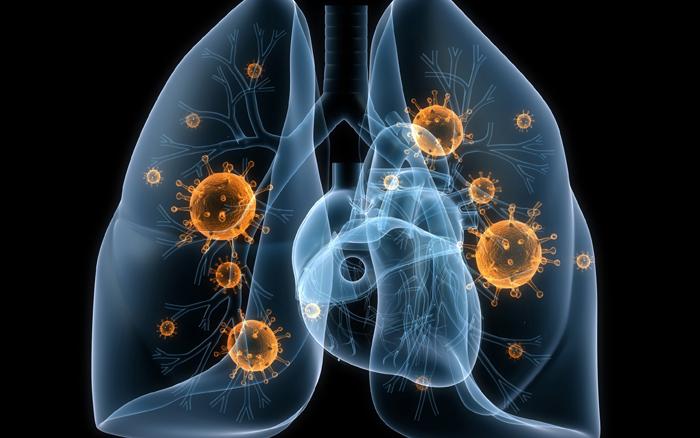 В Польше боятся эпидемии туберкулеза из-за украинских работников